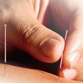 akupuntur-dalam(theclinicard)